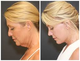 Plastic Surgery St. Louis Cosmetic Surgery