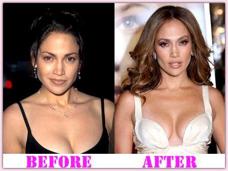 celeb plasticsurgery 0fc13af4a8e92ede6ef155657772f0f9 20201203 Jennifer Lopez plastic surgery November 19, 2020