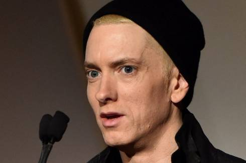 celeb plasticsurgery 1426721270449 20201203 Eminem before and after Plastic Surgery November 11, 2020