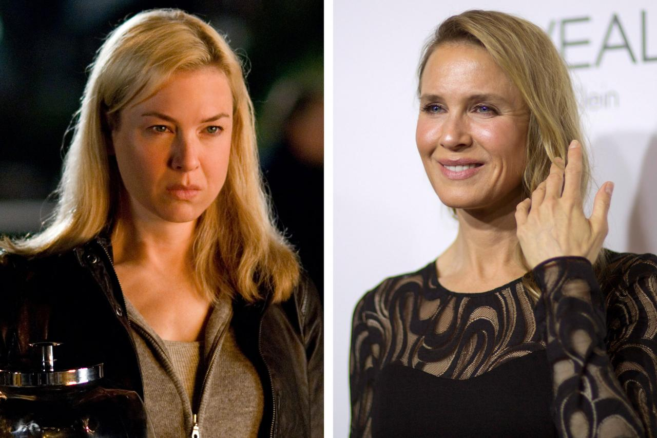celeb plasticsurgery 26RENEE 1 superJumbo 20201203 Renee Zellweger Before and After Plastic Surgery November 9, 2020