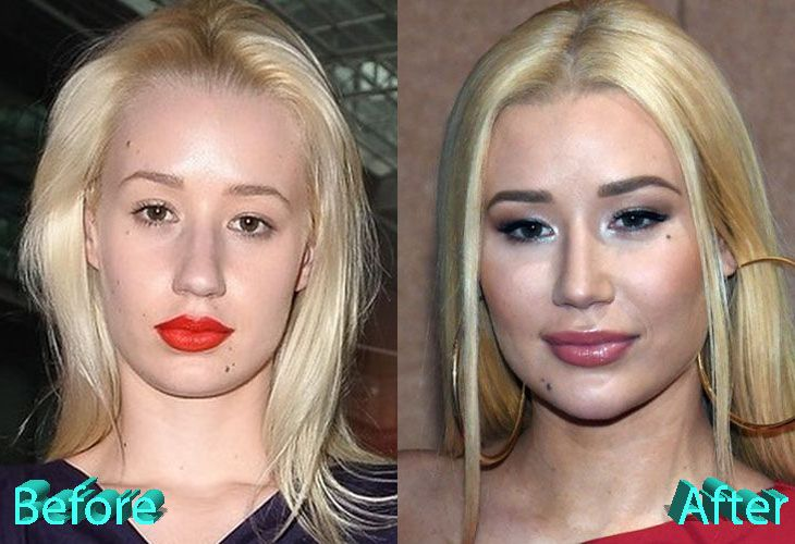 celeb plasticsurgery 7085eca7c7f8a5a464b944c76d1e4dc1 20201203 Iggy Azalea Before and After Plastic Surgery November 4, 2020