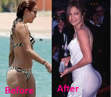 celeb plasticsurgery JL Butt implant 20201203 Jennifer Lopez plastic surgery November 19, 2020