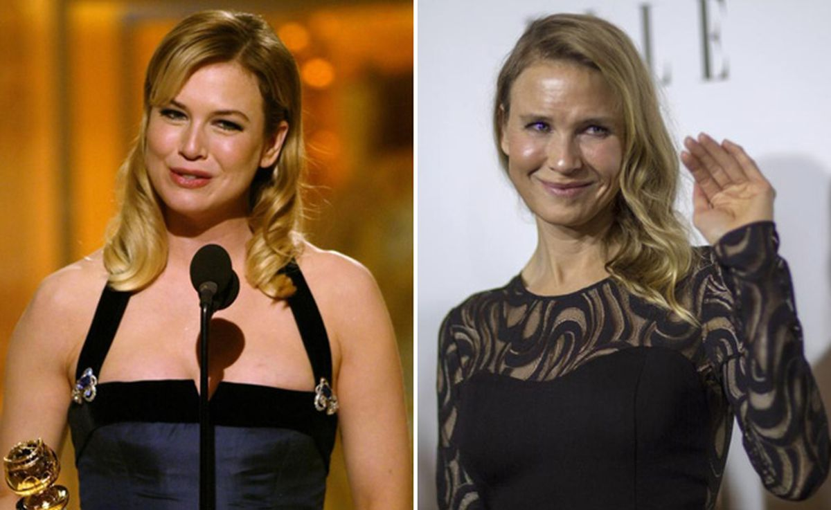 celeb plasticsurgery KS5FZK4YC4TPLAKAA73QODZSHU 20201203 Renee Zellweger Before and After Plastic Surgery November 9, 2020