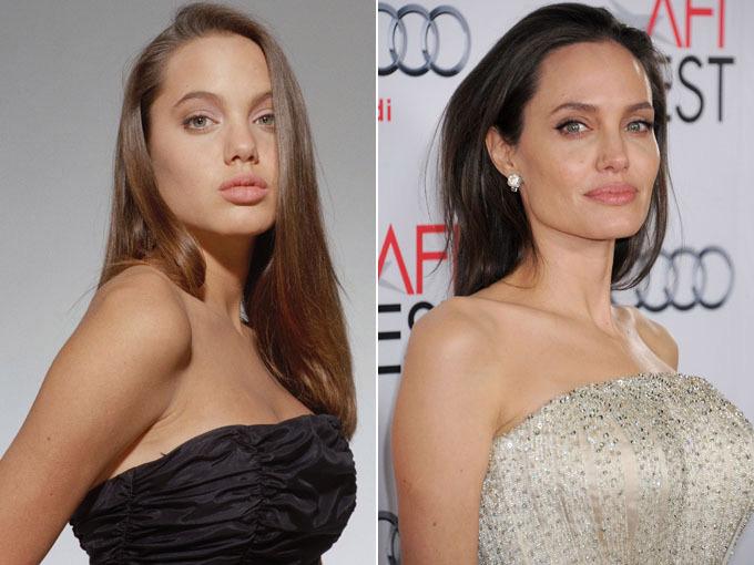 celeb plasticsurgery angelina jolie plastic surgery 1 20201203 Angelina Jolie before and after plastic surgery November 10, 2020