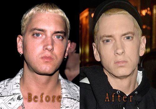 celeb plasticsurgery d518511e81f53c1e0cf5b84f75f15996 20201203 Eminem before and after Plastic Surgery November 11, 2020