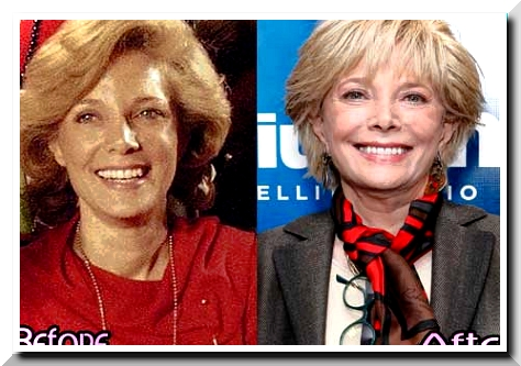 celeb plasticsurgery lesley stahl surgery 20201203 Leslie Stahl Before and After Plastic Surgery November 4, 2020