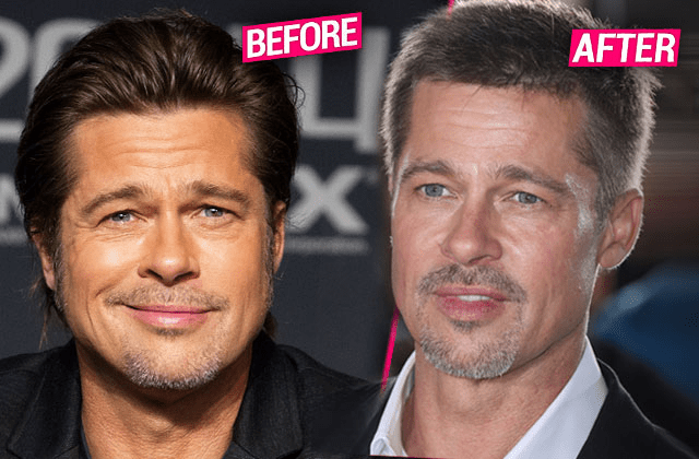 Evidence that Brad Pitt has had plastic surgery