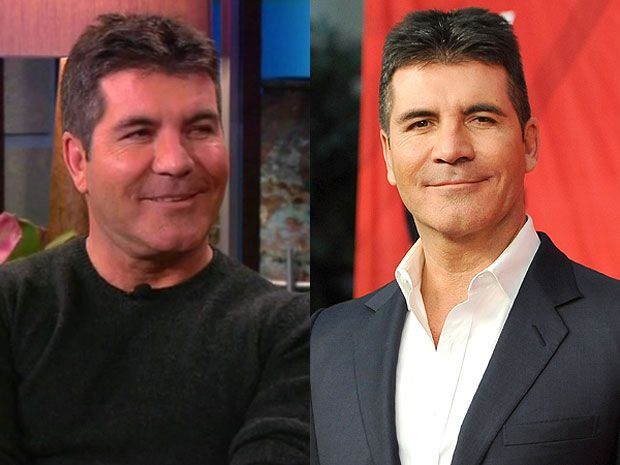 Secrets about Simon Cowell's plastic surgery