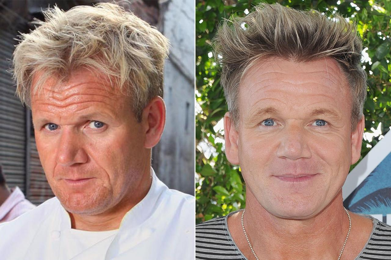 Shocking details about Gordon Ramsay's plastic surgery