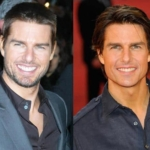 Tom Cruise plastic surgery best thing you need to know in 2021