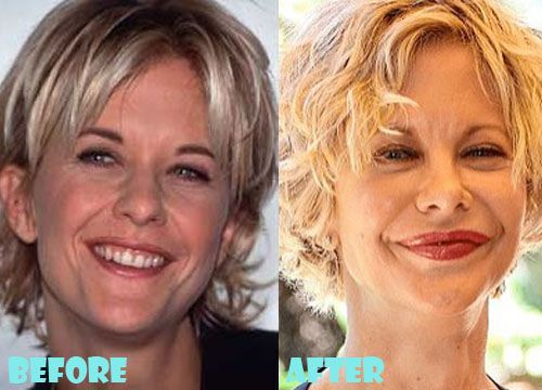 Are rumors about Meg Ryan's plastic surgery true?