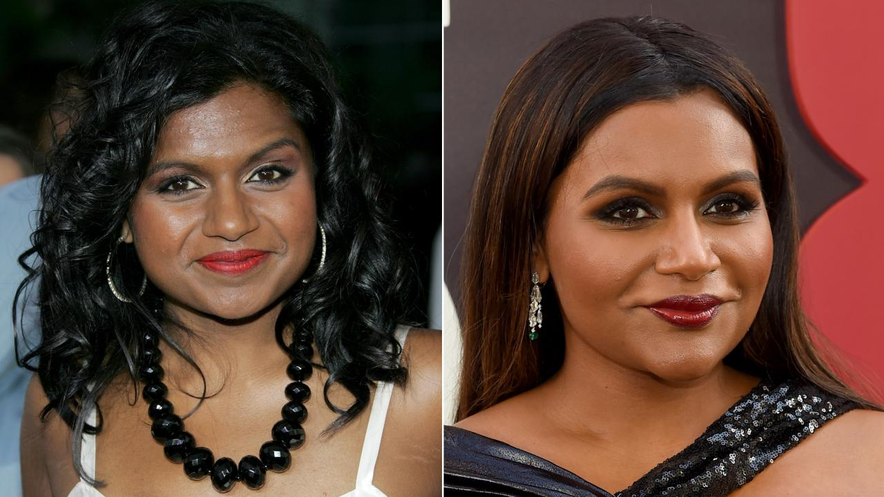 Are rumours about Mindy Kaling's plastic surgery true?