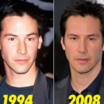 Do you think Keanu Reeves has had plastic surgery?