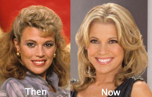 Fresh detaila about Vanna White's plastic surgery